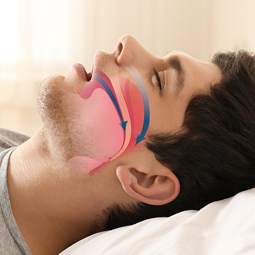 Man with animated airway over his cheek