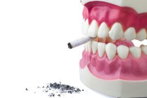 Model of teeth holding burnt cigarette